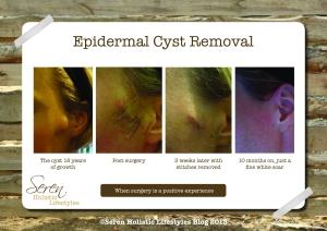Seren Blog Cyst image